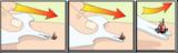 Safecard tekenverwijderaar_